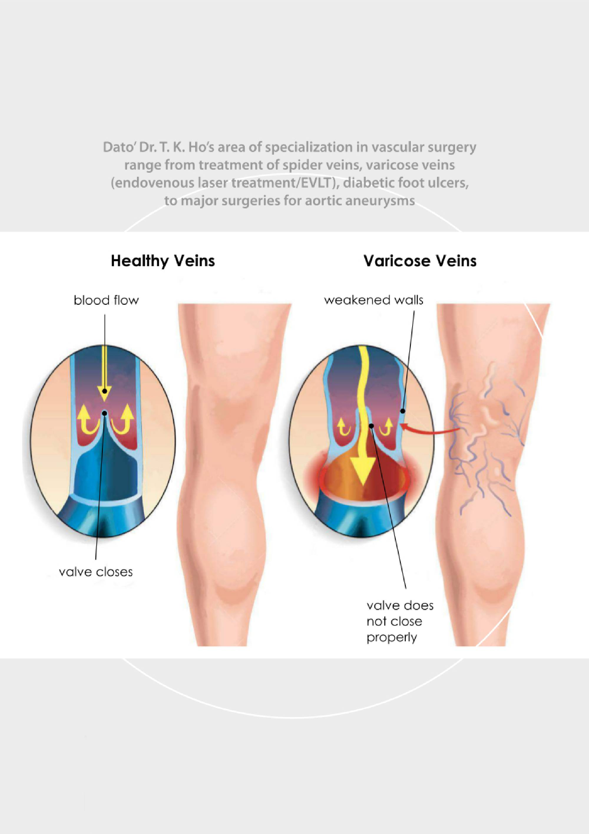 About Vascular Surgery